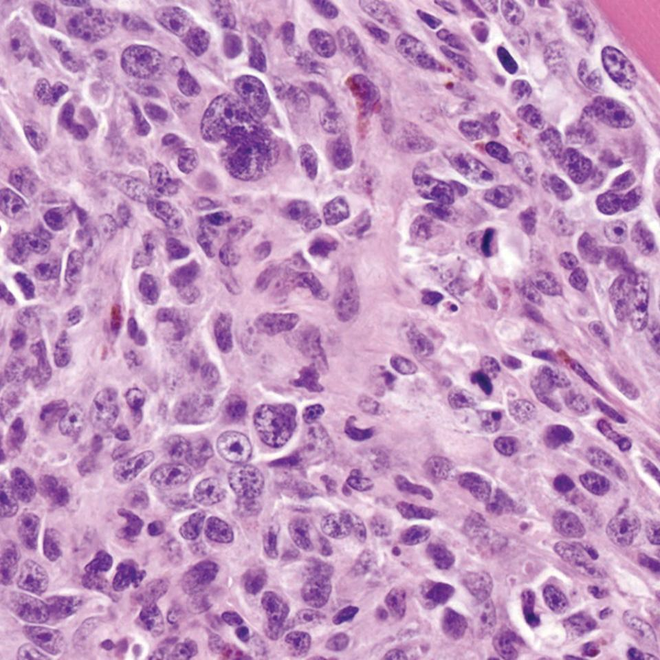 Micrograph of malignant melanoma in a dog's mouth illustrating the nuclei with irregularly-shaped multiple nucleoli, and featuring high mitotic index and scarce melanin pigment.