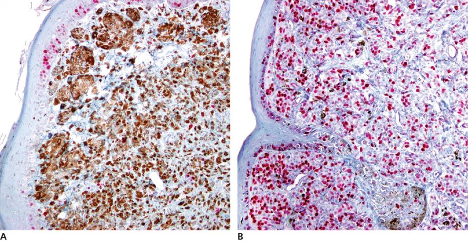 2 Micrographs of malignant melanoma in a dog's mouth illustrating few (a) and high (b) proportion of neoplastic cells with Ki67 immunostaining.