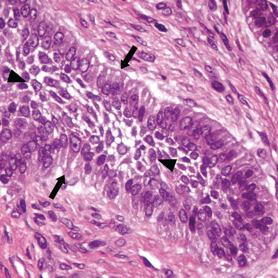 Micrograph of odontogenic epithelium, ameloblastic fibroma, having peripheral (basilar) cells (arrowed), with nonbasilar epithelial cells (arrowheads) connected by prominent intercellular bridges.