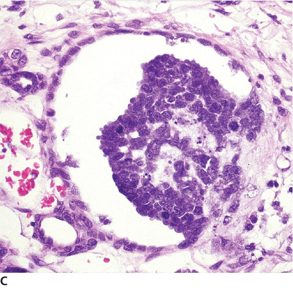 Magnified micrograph displaying nephroblastoma with diagnostic glomeruloid structure, Bowman's space and parietal epithelium. Several mitotic figures and karyorrhectic debris are in the glomerular tuft.