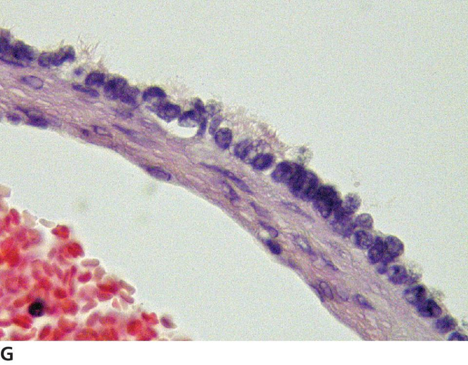 Magnified micrograph of epithelial tumor of the ovary displaying some flattened epithelial cells retaining cilia, characteristic of the rete and not of SES.