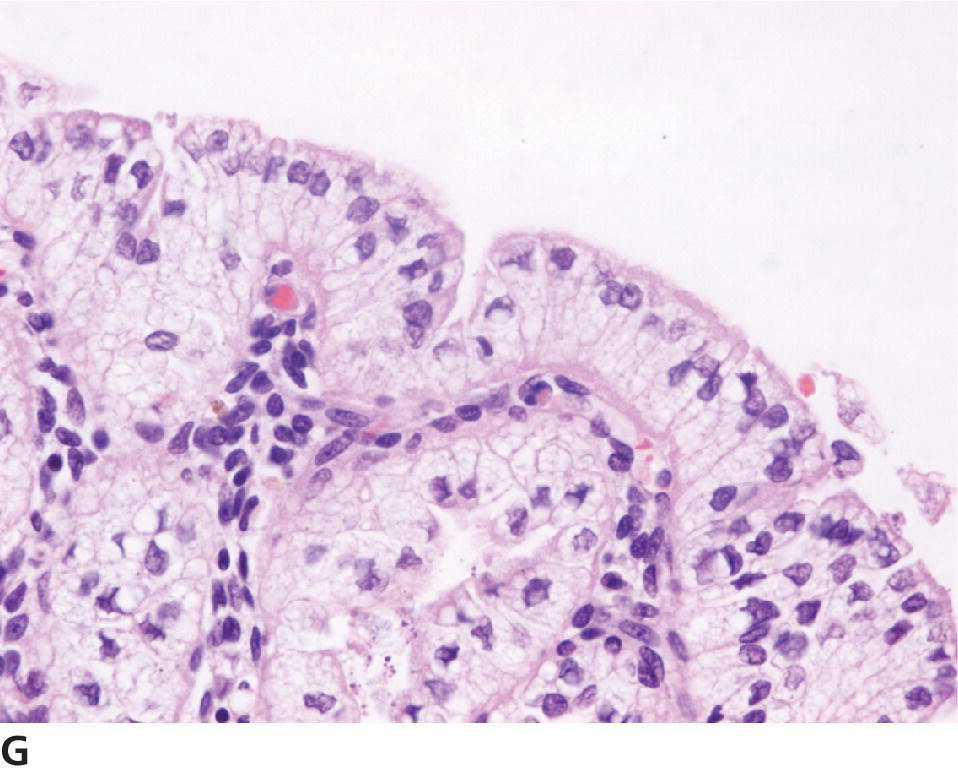 Micrograph of tumors of the uterus and vagina illustrating cystic endometrial hyperplasia of the uterus of a cat, with progestational epithelium lining the cysts, superficial epithelium, and glands.