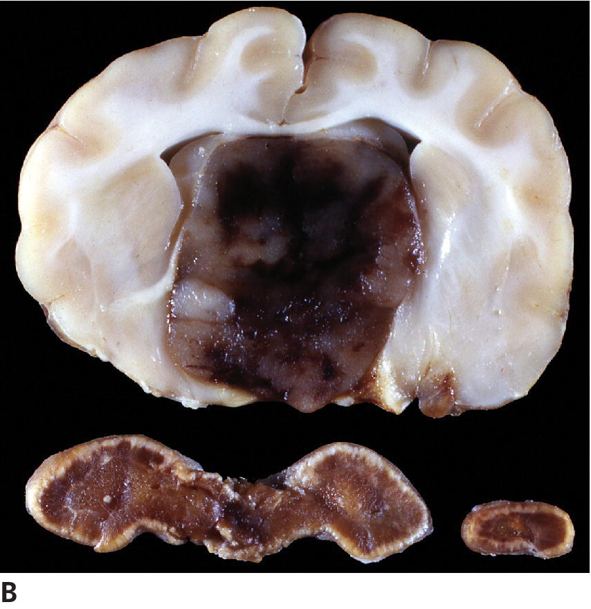 Photo of the frontal section of the brain (top) and cross-section of the adrenal glands (bottom), displaying compression of the brain by the adenoma and the atrophy of the adrenal cortices due to the lack of ACTH.