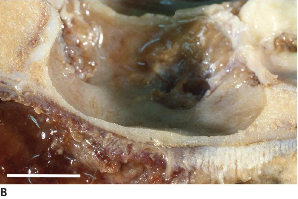 Photo of acidophil adenoma of ewe displaying the erosion of sella turcica with adenoma remained confined to the sella turcica.
