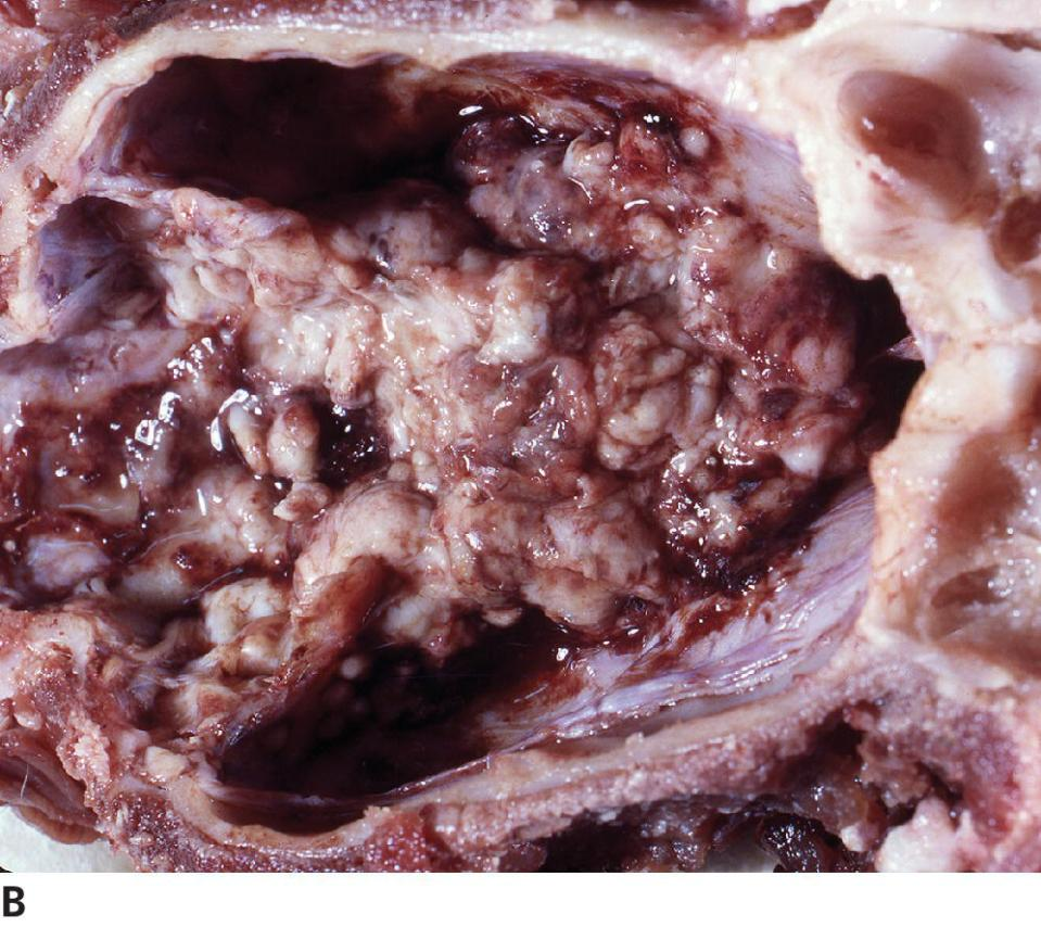 Photo of pituitary chromophobe carcinoma of a dog displaying invasion into the sphenoid bone of the sella turcica.