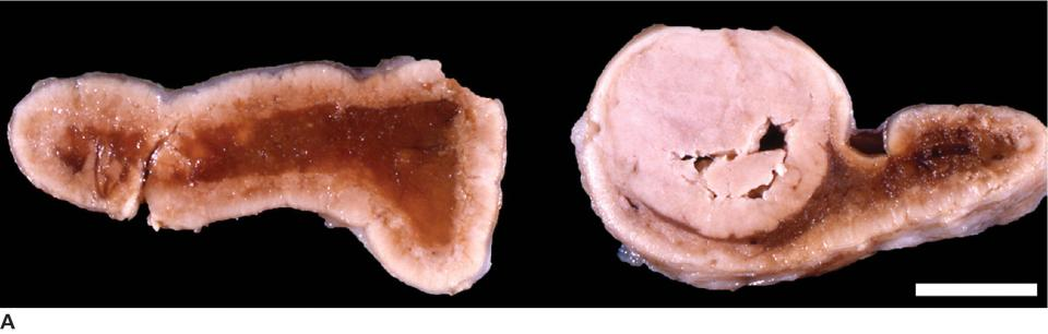Photo displaying well-demarcated functional adenoma from a dog (right) and cortex of the contralateral adrenal (left).
