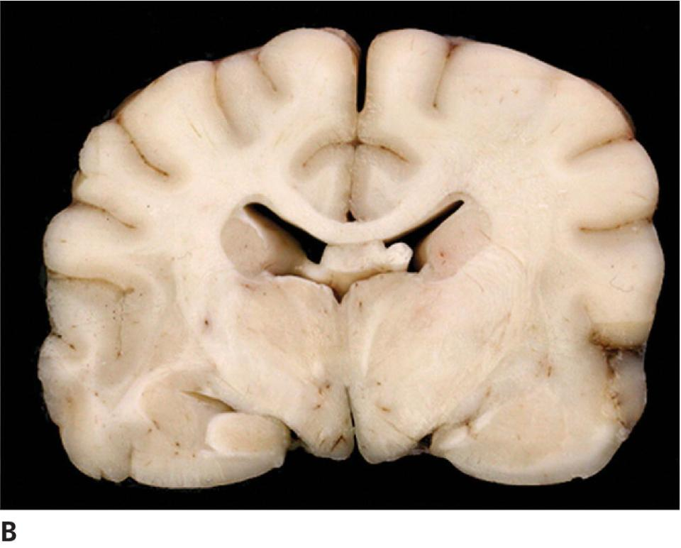 Photo of gliomatosis cerebri of canine displaying transverse section of brain corresponding to the same slice level as the MRI with focal areas of edema most obvious on the right side of the matter.