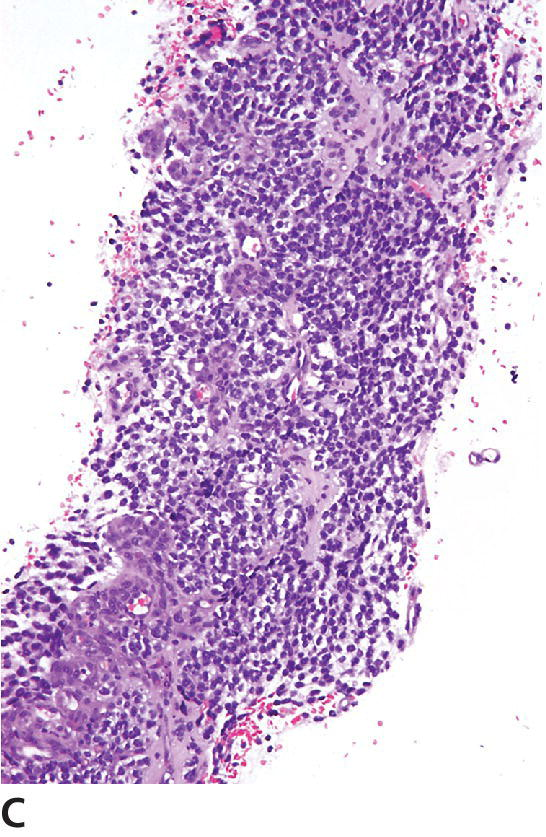 Micrograph of grade III oligodendroglioma of canine displaying biopsy core sample with oligodendroglioma cells and a prominent microvascular proliferation.