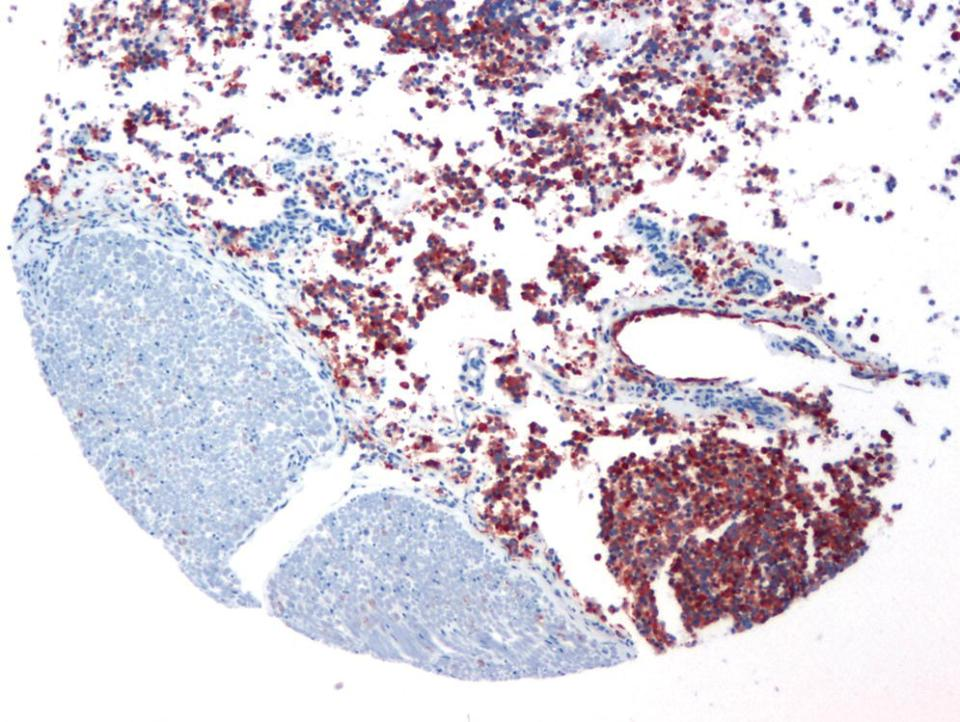 Micrograph displaying grade III oligodendroglioma of spinal cord of a canine with overexpression of PDGFRα. Unstained tissue at bottom left is a spinal peripheral nerve root.