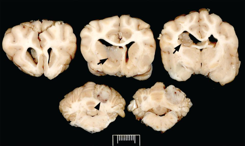 Photo displaying coexistence of an oligodendroglioma in the left caudate nucleus and septal area with intraventricular spread (arrows) and of a meningioma (arrowhead) in the cerebellum of a canine.