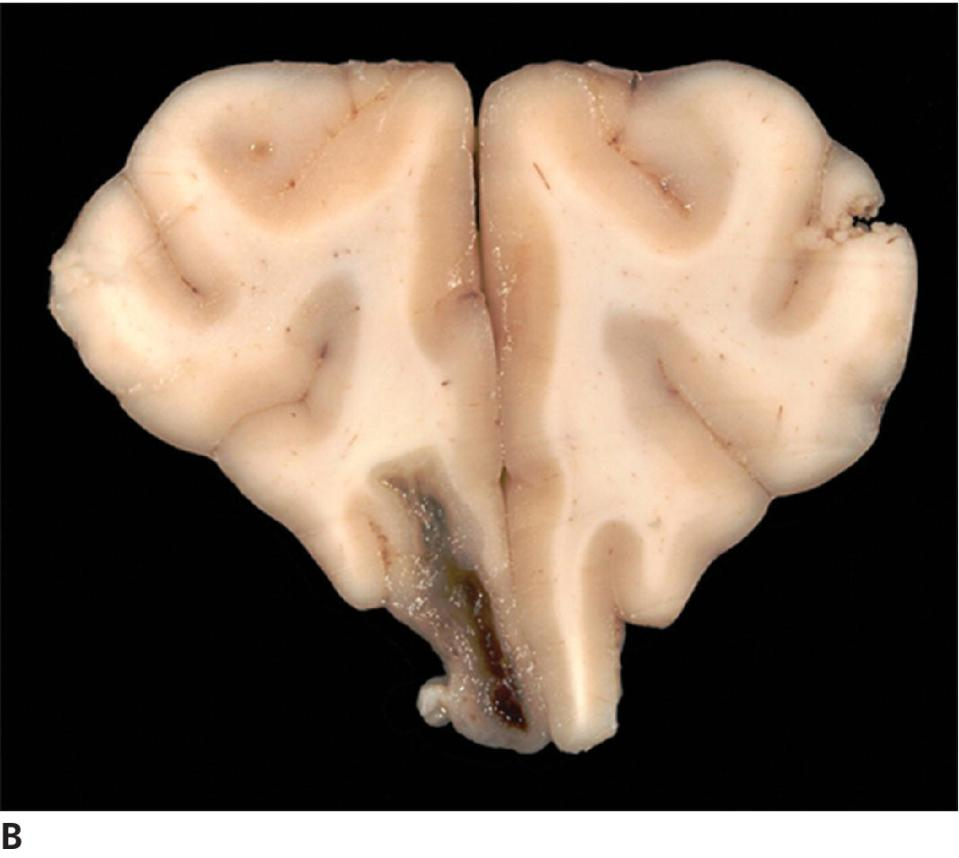 Photo displaying a corresponding gross section of the frontal lobe displaying an elongate cystic mass within the ventricular system.