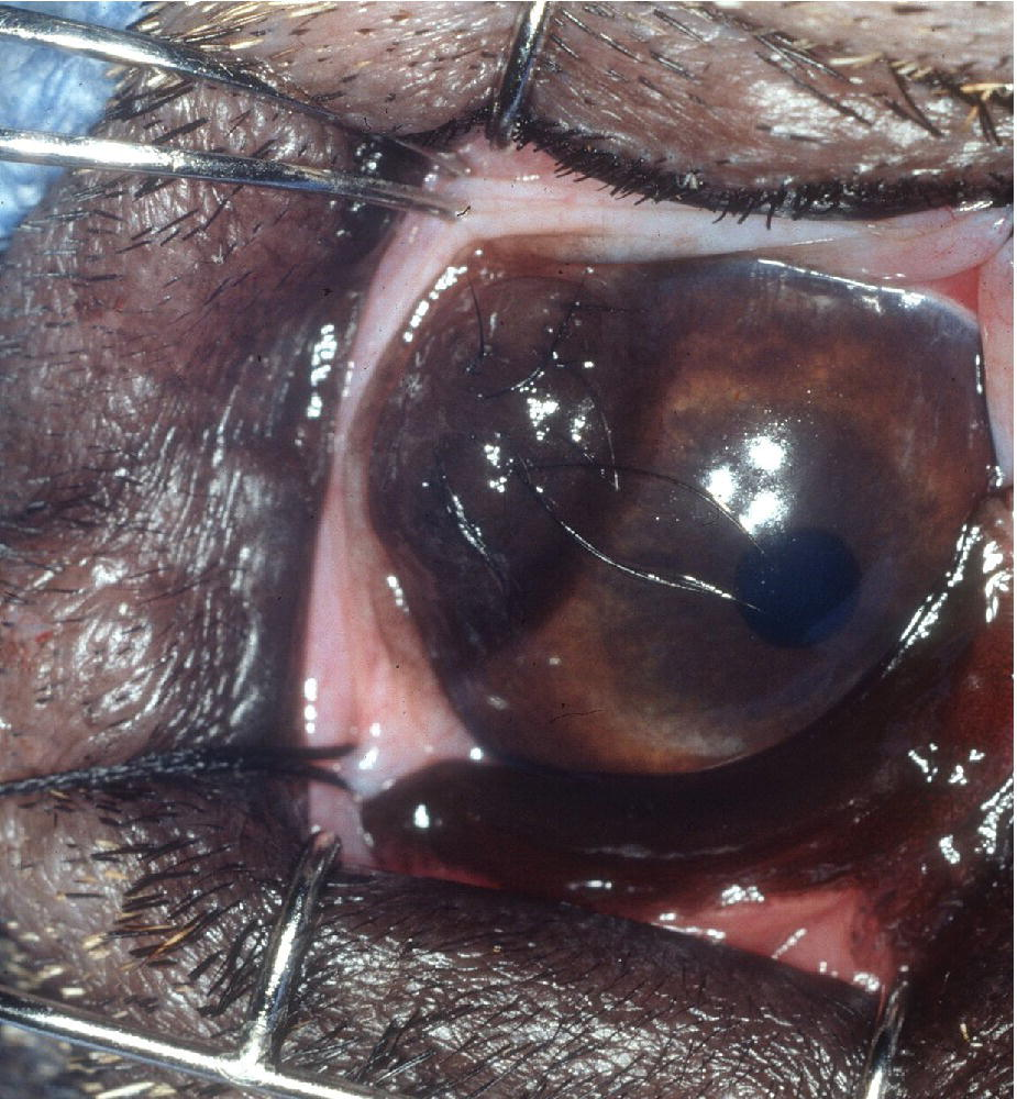 Photo displaying the eye of a St. Bernard puppy with corneoconjunctival dermoid affecting the lateral limbus with few long and coarse hairs.