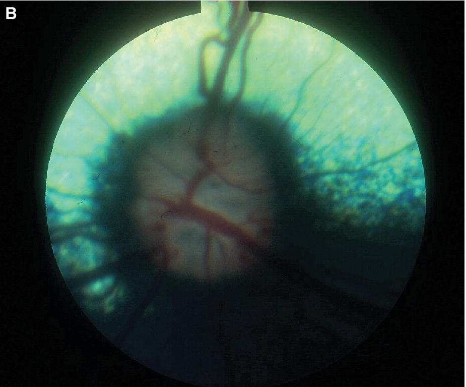 Fundus photo of a dog displaying more advanced optic nerve head changing in primary open angle glaucoma with its optic nerve smaller than usual, its myelin lost and pigmented.
