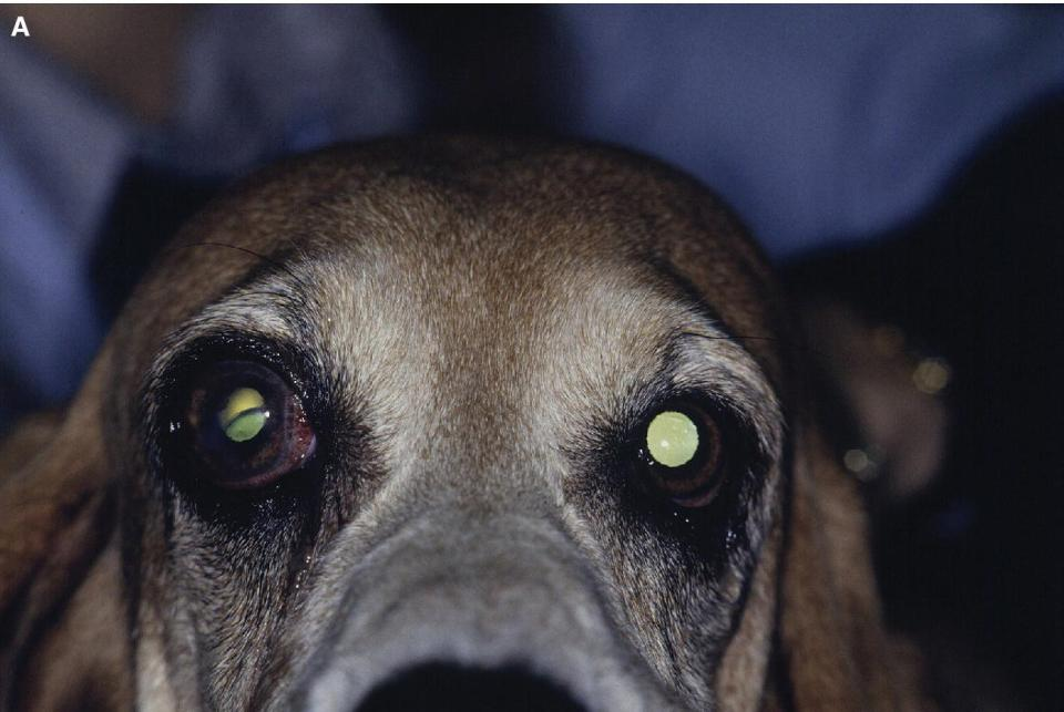 Photo of a Basset Hound dog with pectinate ligament dysplasia affecting both eyes of advanced glaucoma affecting one eye and early glaucoma in the opposite eye.