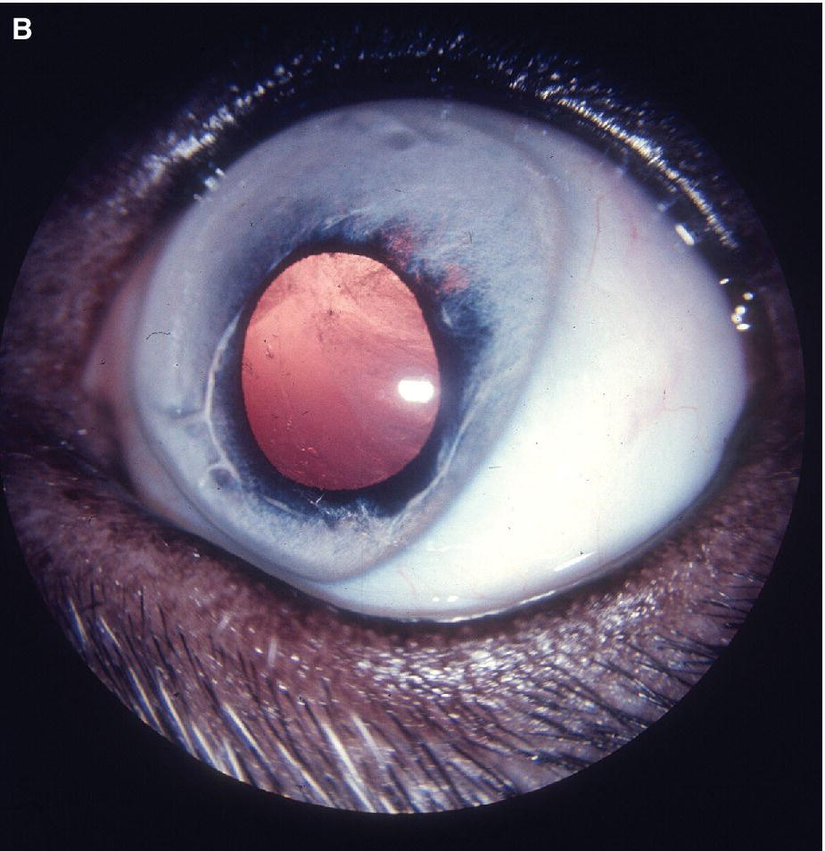 Photo of an eye of an Australian Shepherd puppy displaying heterochromia iridis in an excessively light with bilateral microphthalmia and early cataract within the lens viewed via retroillumination.