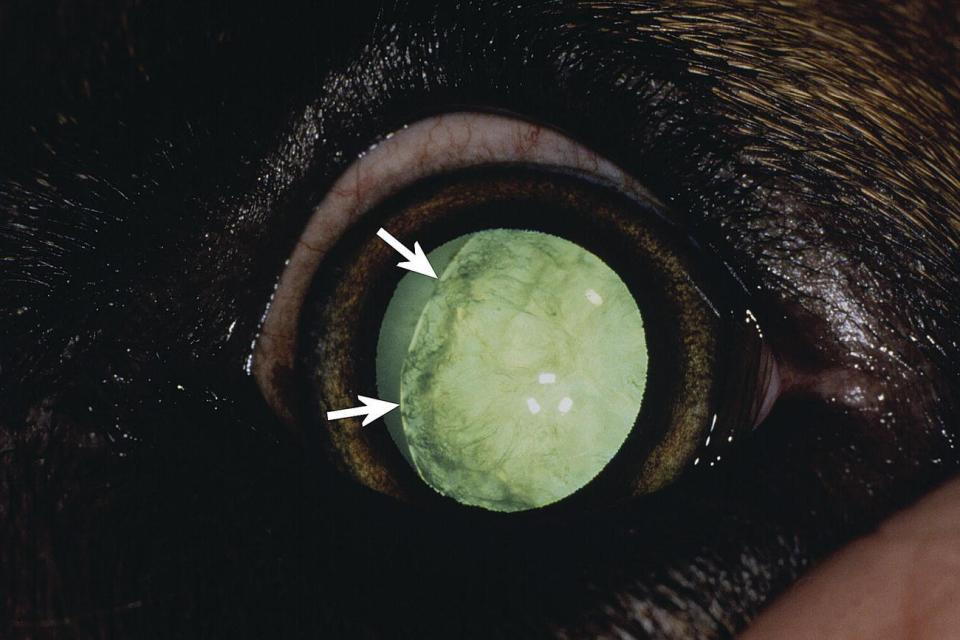 Photo displaying lens coloboma being a flattened area devoid of zonulary attachments (arrows) and an incomplete and immature cataract in a puppy's eye.