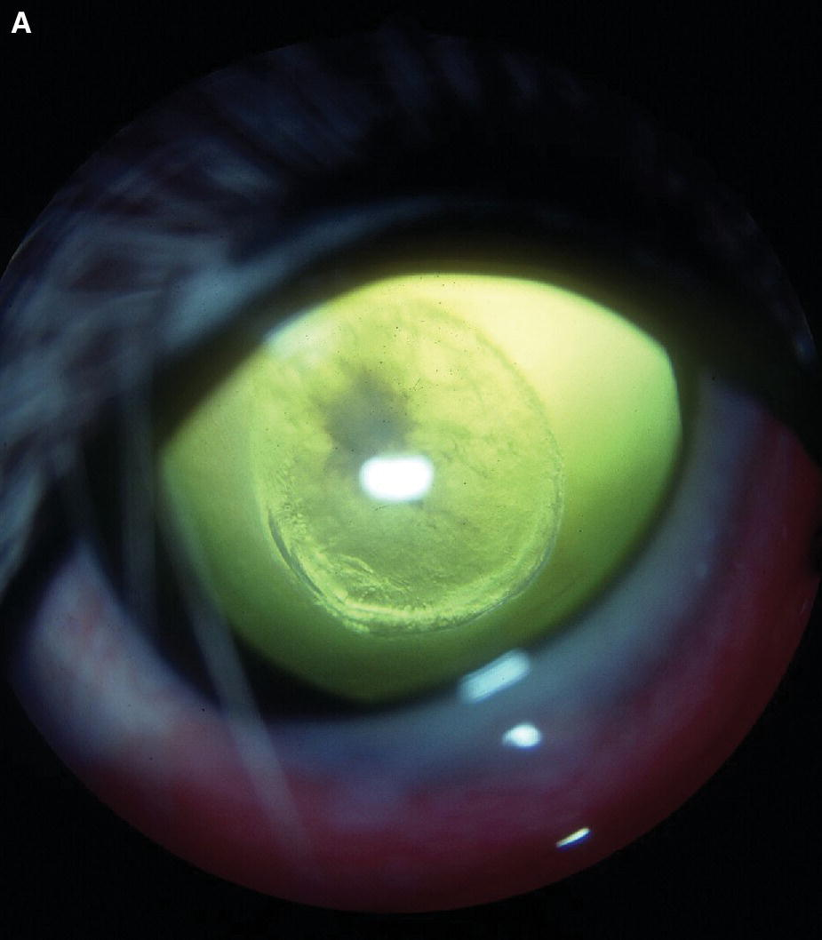 Photo displaying lenticonus in an Old English Sheepdog puppy's eye, with discrete focal cataract affecting the posterior cortex and posterior lens capsule.
