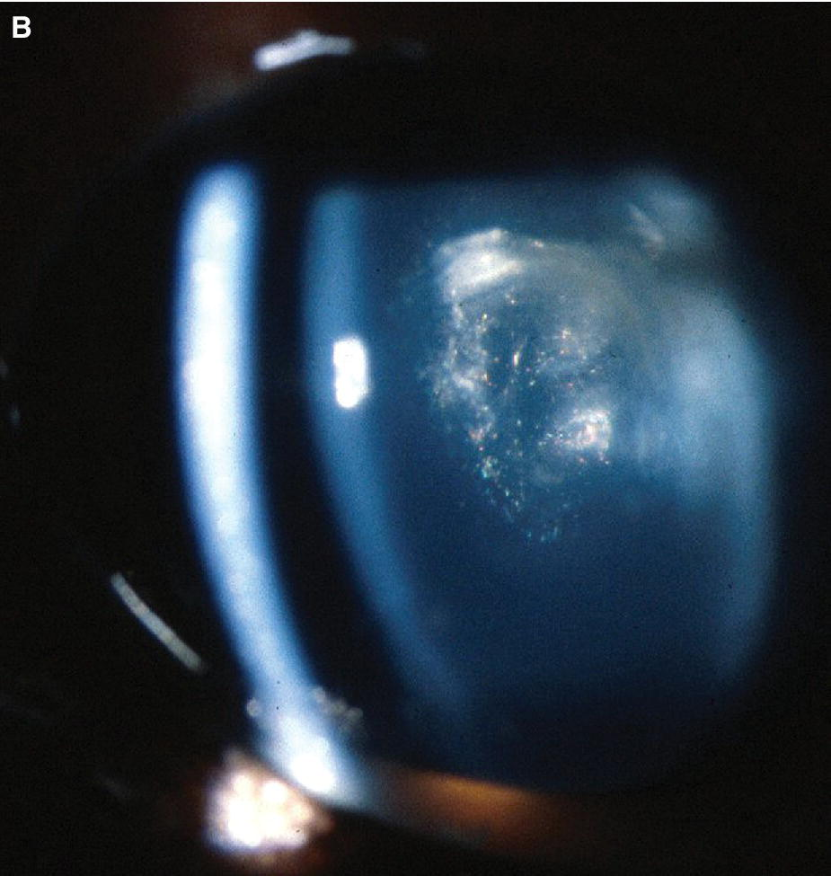 Photo displaying extensive cataract formation in a Chesapeake Bay retriever's eye. The cataract formation is concentrated in the lens nucleus, but has extended into the posterior cortex.