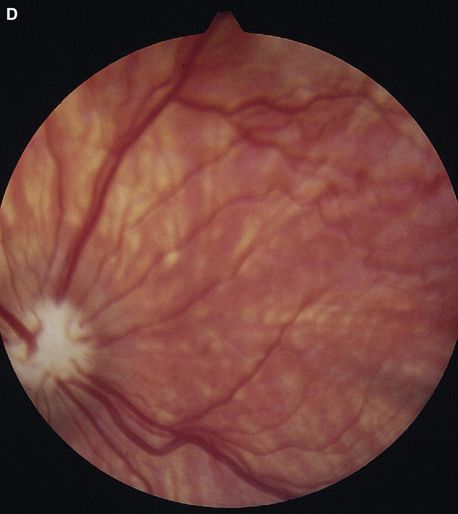 Fundus photograph displaying sub‐albinoid ocular fundus in a dog with heterochromia iridis.