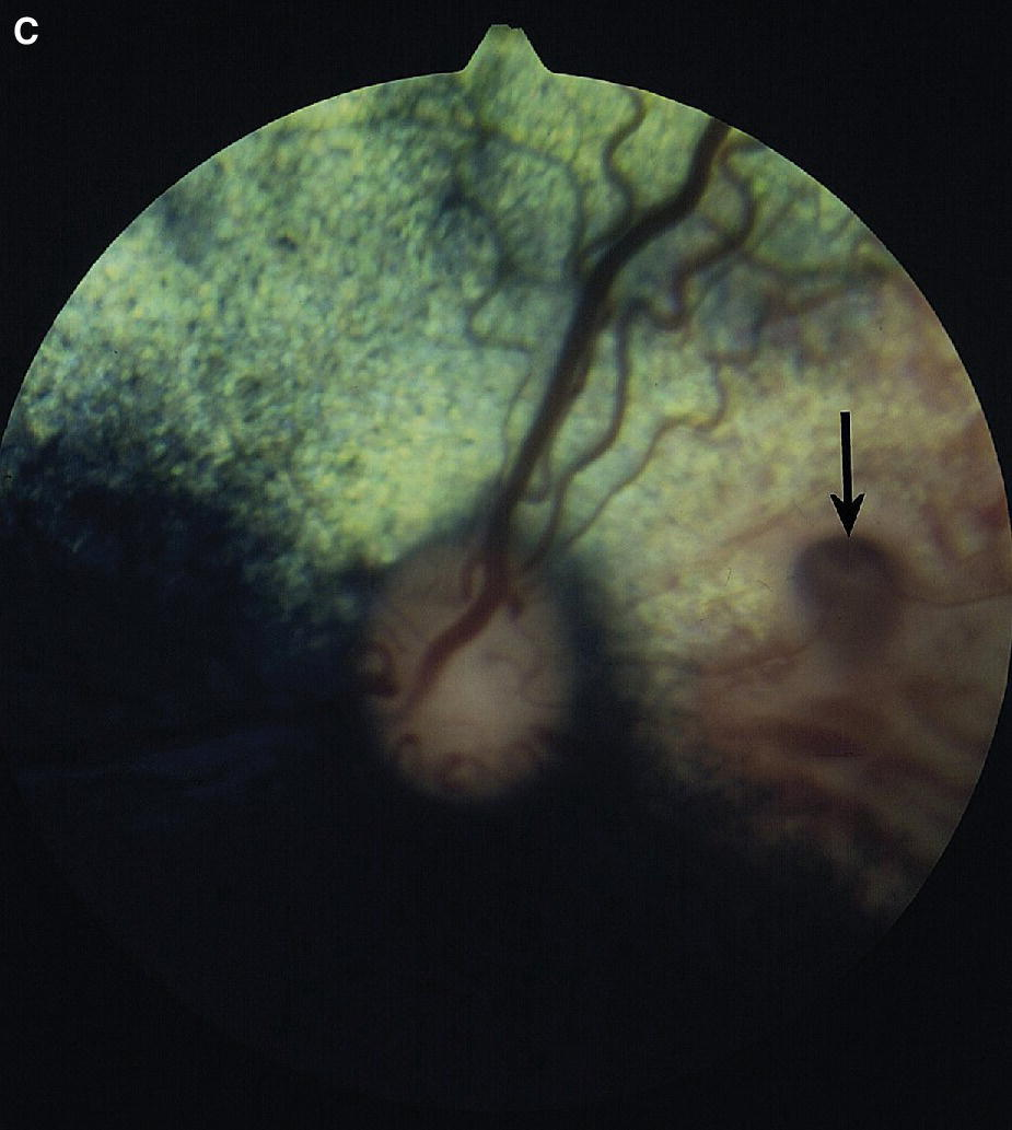 Fundus photograph displaying the colobomas (arrowed) and focal choroidal hypoplasia area.