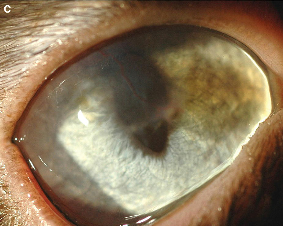 Photo displaying the earliest manifestation of sequestrum associated with pigmentation of the cornea.