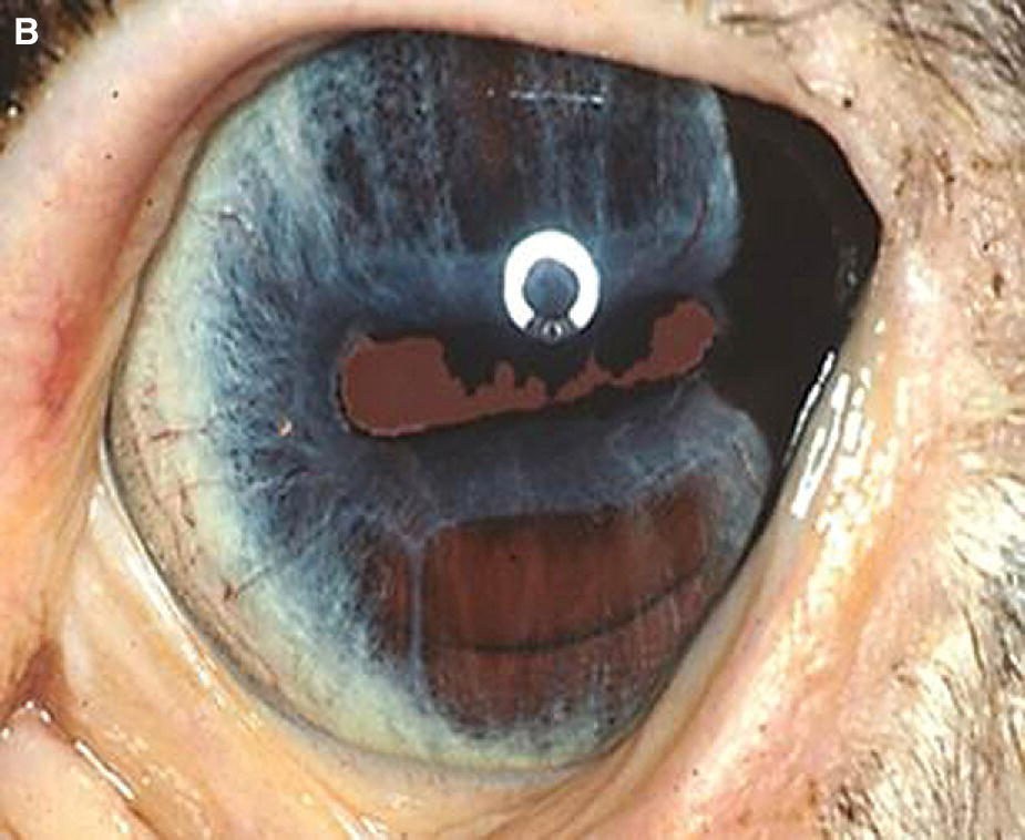 Photo of a blue-eyed horse displaying iris hypoplasia with the ventral equator of the lens visible behind the thin iris.