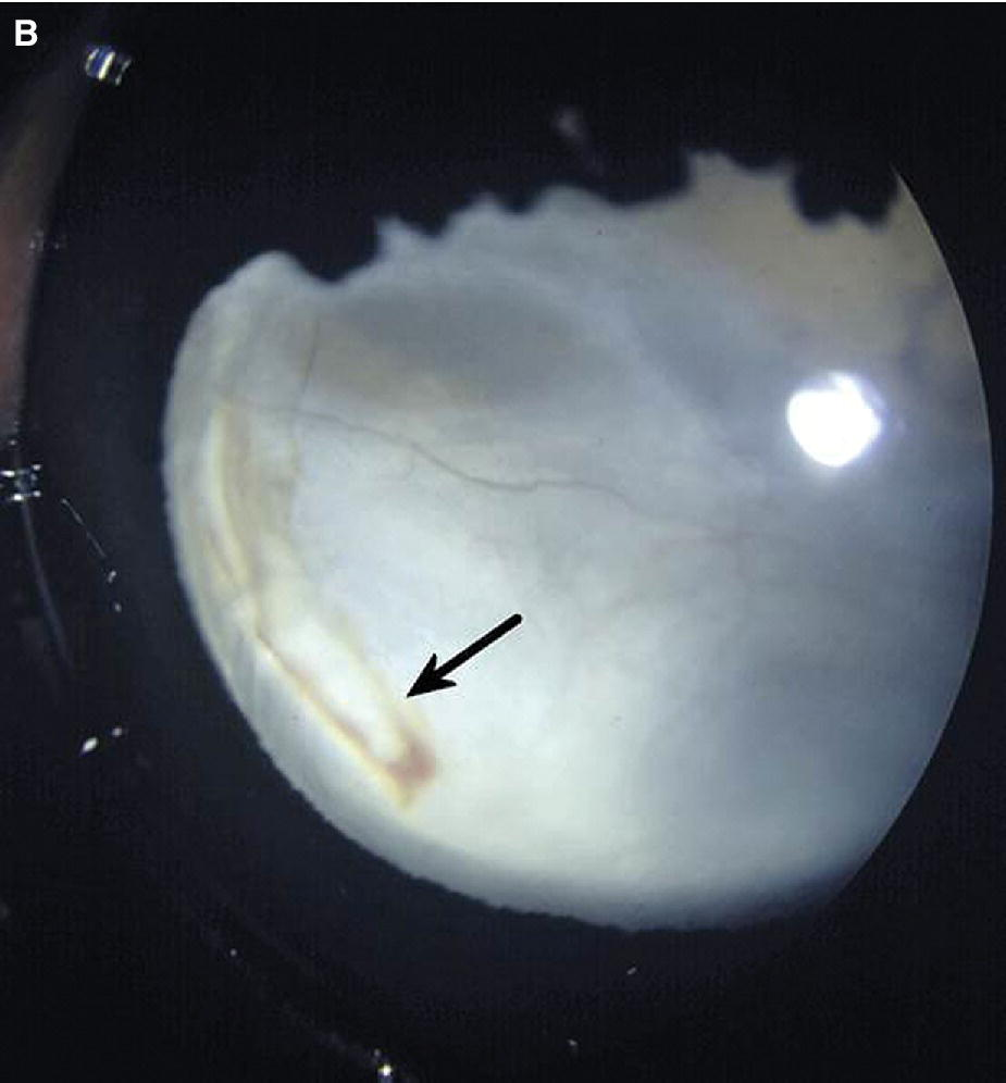 Photo displaying a foal's eye with arrow depicting the red hyaloid vessels on the posterior lens surface.