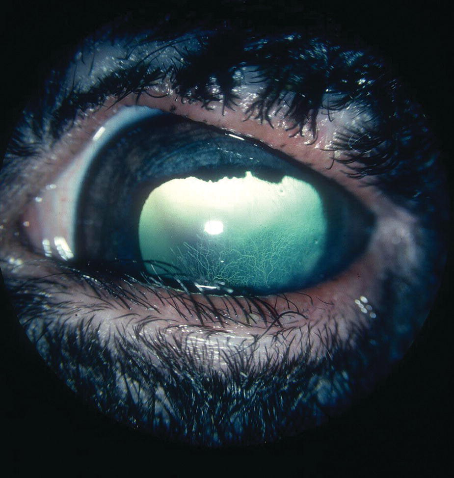 Photo displaying a sheep's eye with entropion affecting the entire lower eyelid and causing a ventral corneal ulcer.