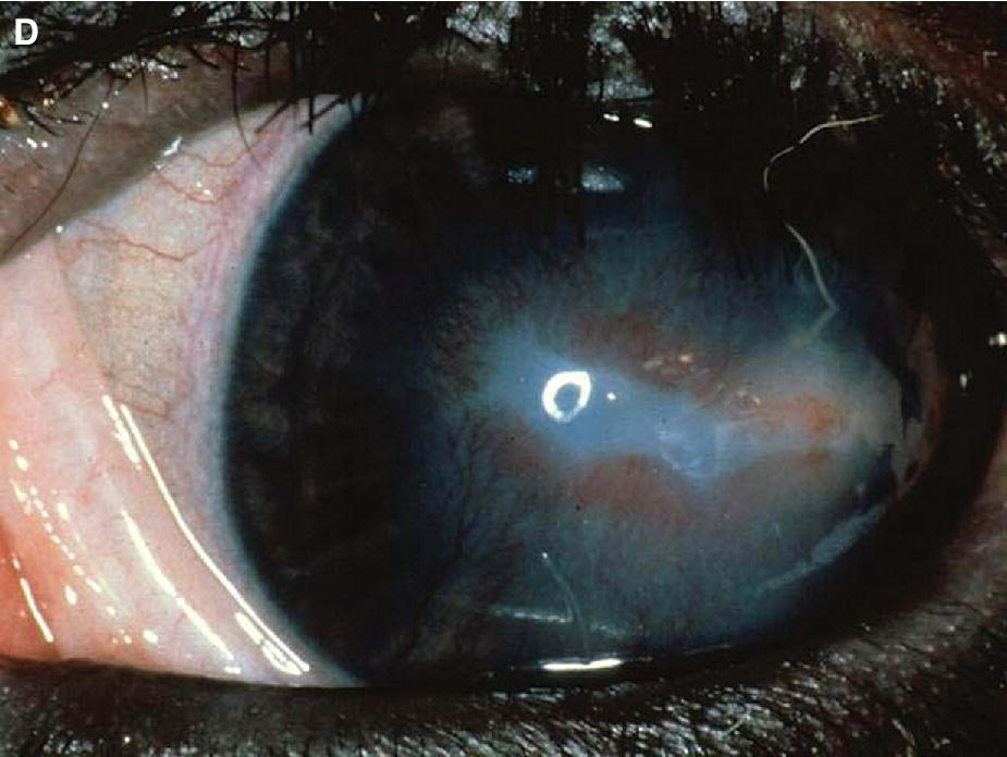Photo of a cattle's eye displaying IBK with a healing corneal ulcer.