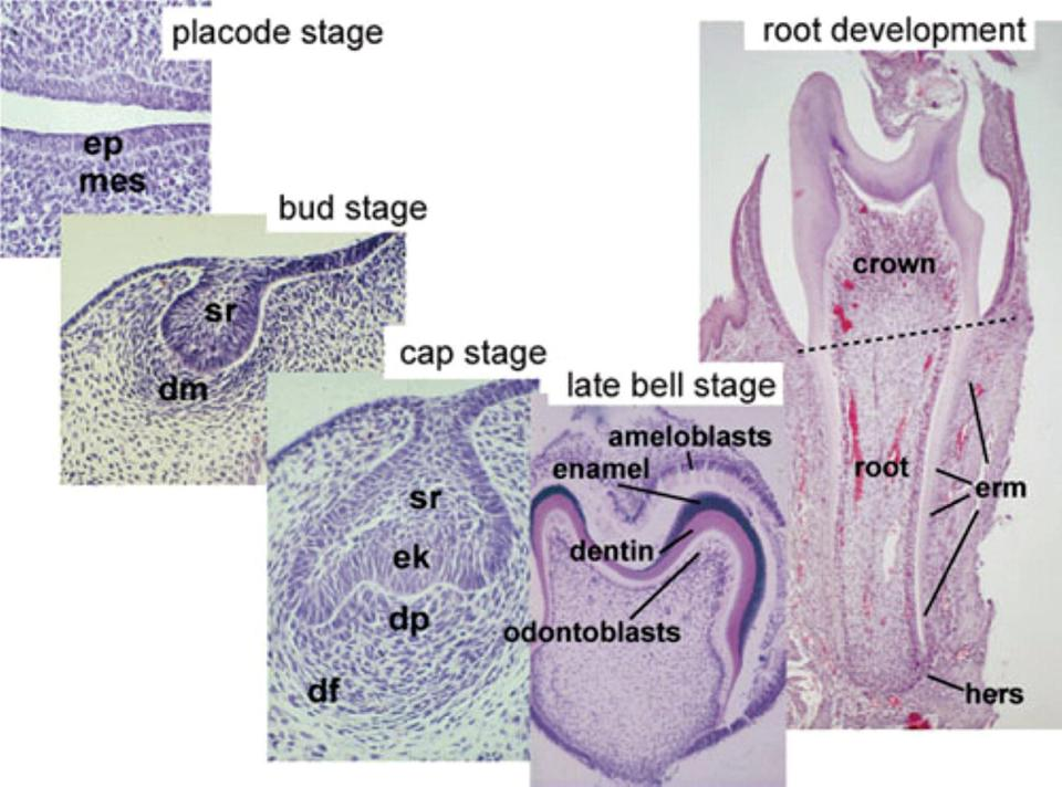 Micrographs of 5 important stages of tooth development: placode stage, bud stage, cap stage, late bell stage, and root development. Ep and mes are indicated the first stage, sr and dm in the second stage, etc.
