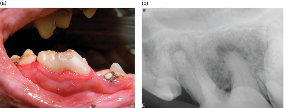 Photo (left) and radiograph (right) of teeth and gingiva with endodontic disease caused by uncomplicated crown fractures with dentinal tubule exposure.