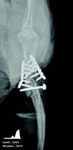 Humerus Fractures