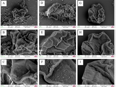 Potential Anti-Acanthamoeba And Anti-Adhesion Activities Of Annona Muricata And Combretum Trifoliatum Extracts And Their Synergistic Effects In Combination With Chlorhexidine Against Acanthamoeba Triangularis Trophozoites And Cysts