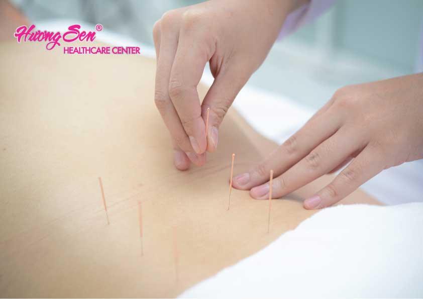 Châm cứu chữa đau lưng tại Hương Sen Healthcare Center