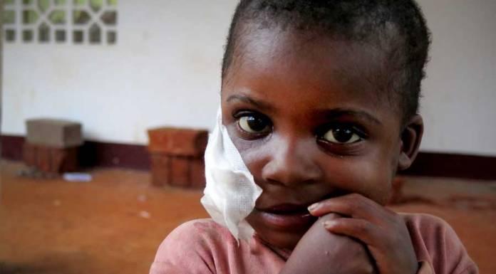 enfermedad Noma Camerún