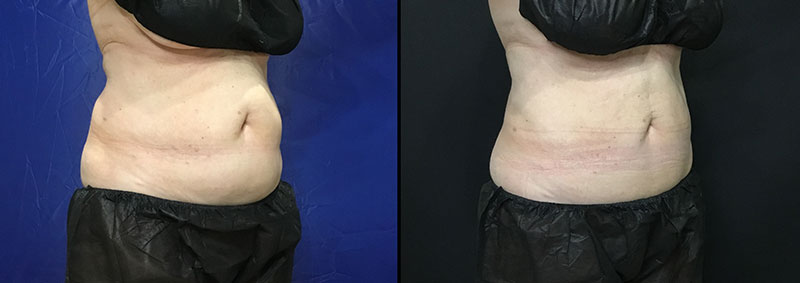 abdomen before after