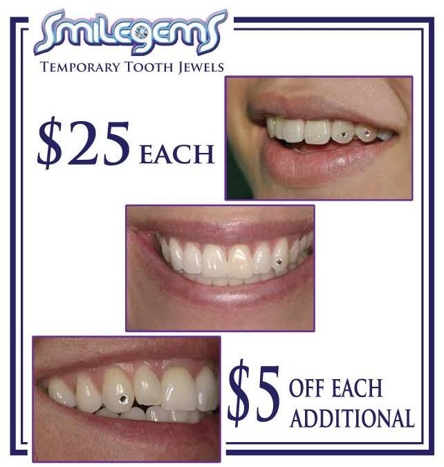 Now Offering Smilegems at Our Sterling Heights Location