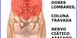 Vico Massagista, São José SC, Dor Nervo Ciático, Nas Costas, Coluna, Lombar, perna, coxa, panturilha - Massagem Terapêutica Quiropraxia Massoterapia Acupuntura