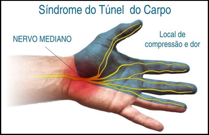 Síndrome do Túnel do Carpo - Tratamento e alívio da dor  #tuneldocarpo #doenca #nervomediano #compressao  #dor #domencia #formigamento #sensibilidade  #fraqueza #mao #dedos #massagem #massoterapia #saojosesc #florianopolis