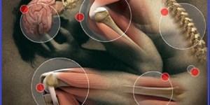 Contraturas e distensoes musculares - como definir e tratar essas dores