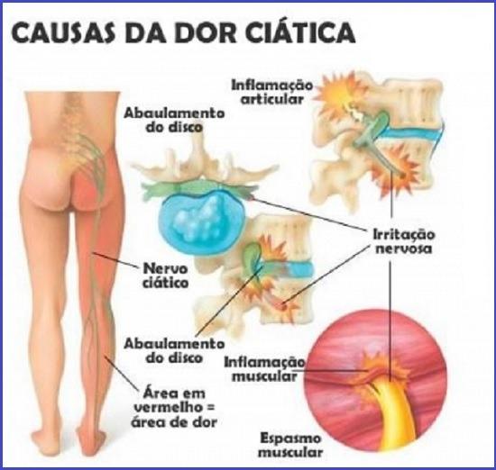 Hérnia de disco lombar (discopatia): o que é, quais os sintomas, tratamento e se existe cura