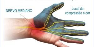 """Sente dores, formigamento e dormência nas mãos? Cuidado, pode ser a """"Síndrome do Túnel do Carpo"""" - Vico Massagista, São José SC, Massagem, Massoterapia, Quiropraxia e Acupuntura"""