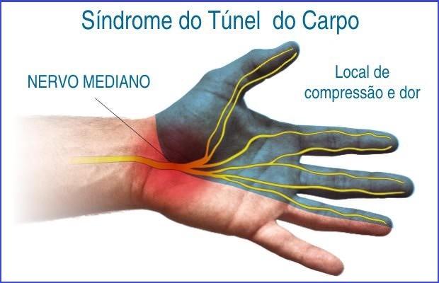 Síndrome do Túnel do Carpo: doença degenerativa causada por movimento repetitivo.,