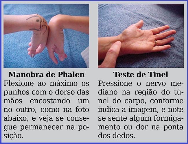 Síndrome do Túnel do Carpo: doença degenerativa causada por movimento repetitivo, dor, formigamento e dormência nas mãos