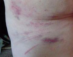 Basking in Bruises #SinfulSunday