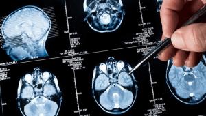El día internacional contra el cáncer cerebral