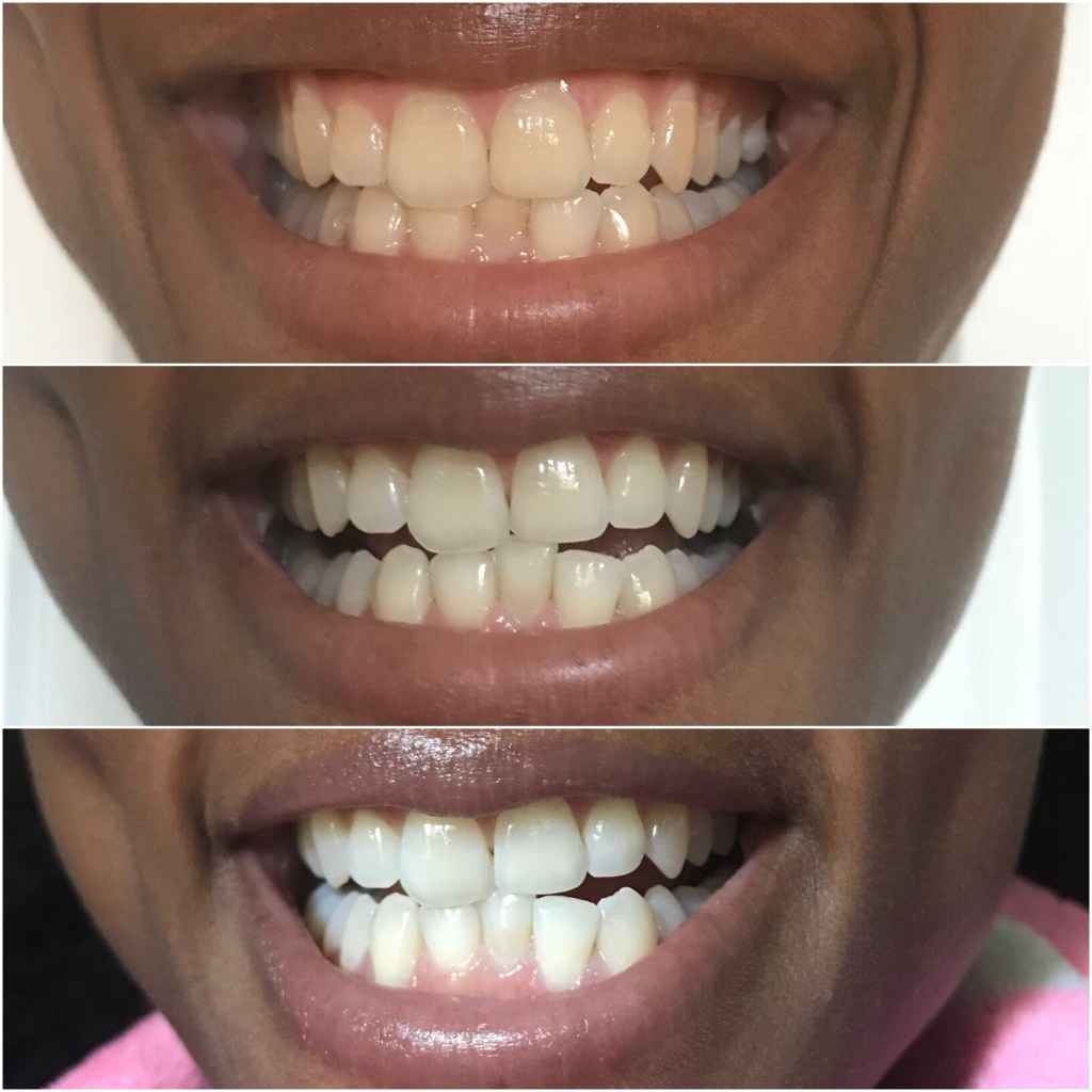Teeth Whitening with Bianco Smile1