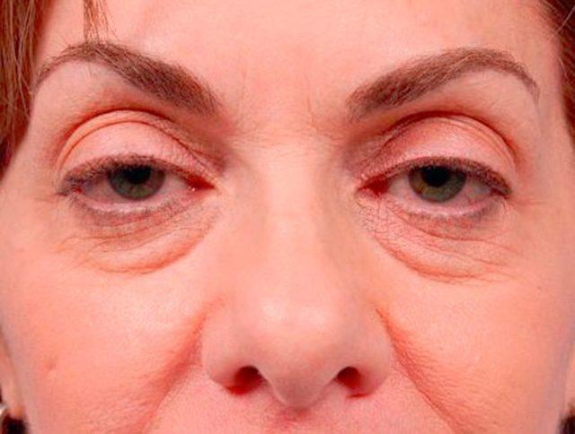 mujer antes de la blesfaroplastia