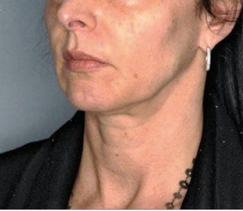 rejuvenecimiento facial antes de los hilos tensores