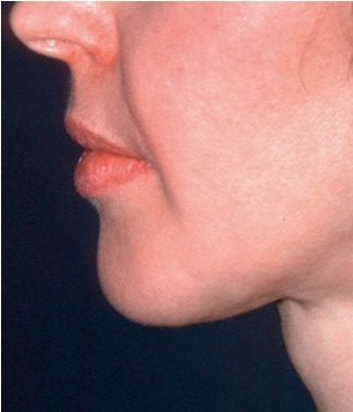 Infiltración de grasa en el rostro